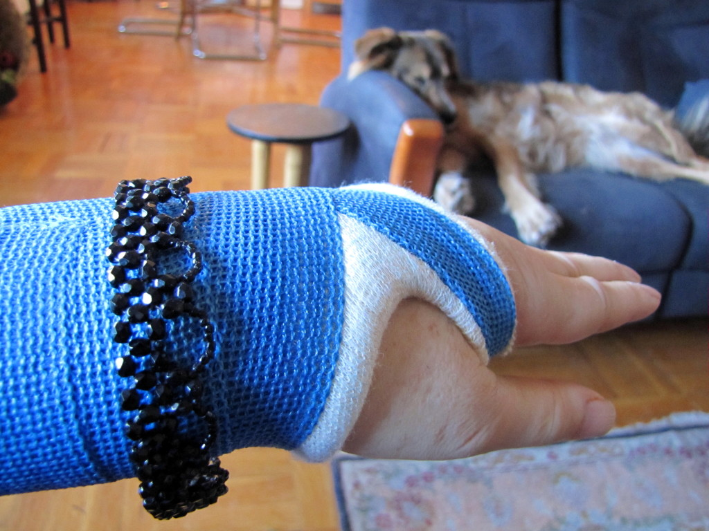 My bejewelled wrist cast in January